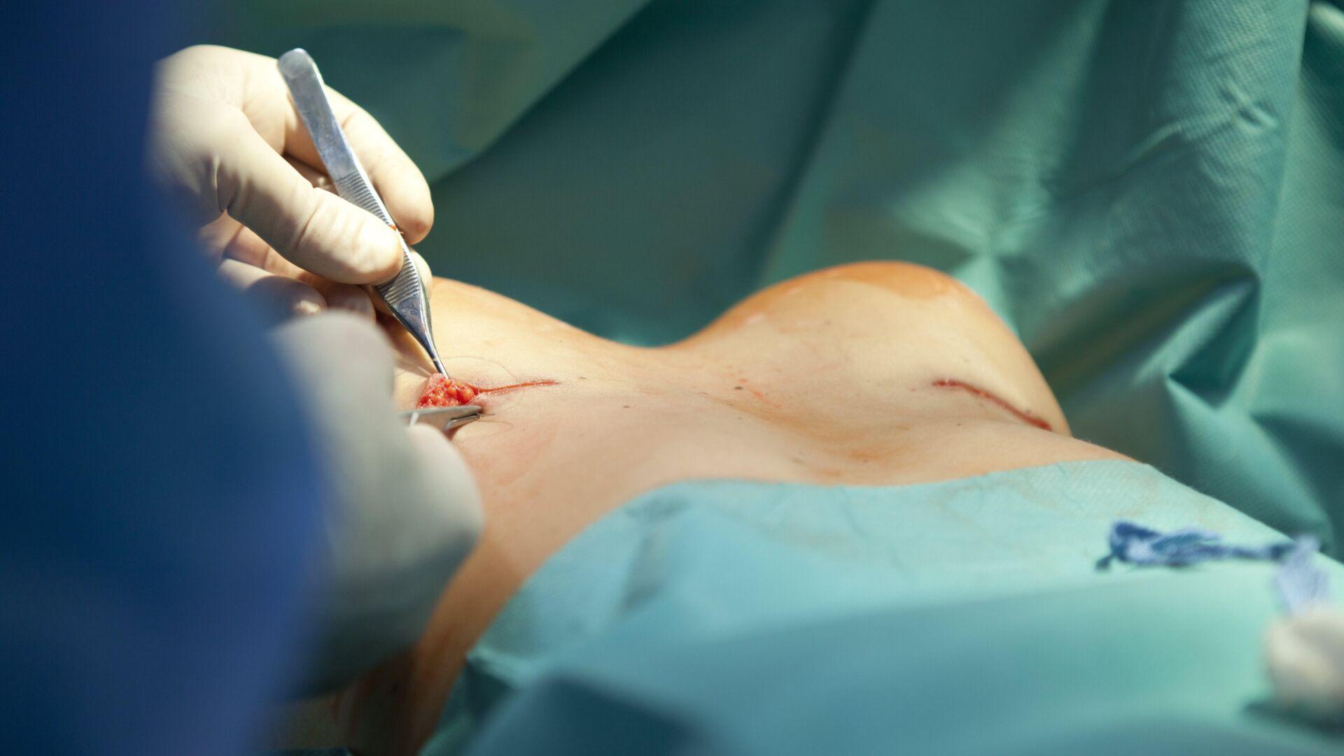 Het Belang Van Oksel Lipofilling